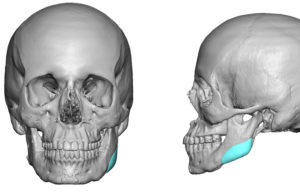 Custom Jaw Angle Implant for Asymmetry Dr Barry Eppley Indianapolis