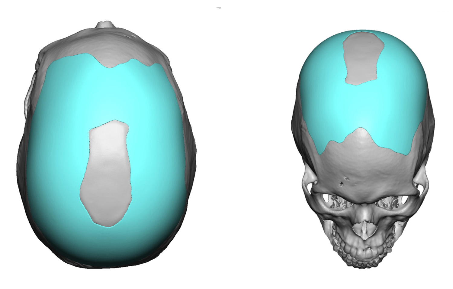 Blog ArchiveCase Study: Sagittal Crest Skull Reduction with Custom ...