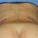 Effects of Posterior Rib Removal for Waistline Narrowing Dr Barry Eppley Indianapolis