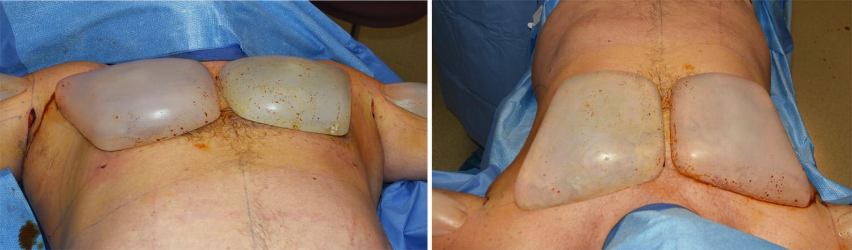 Silicone Implant Study 118