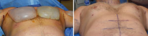 Extra Large Custom Pectoral Implant immediate intraop result below view Dr Barry Eppley Indianapolis