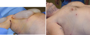 Extra Large Custom Pectoral Implants intraop result right side view Dr Barry Eppley Indianapolis