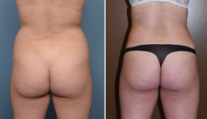 Female Liposuction results back view Dr Barry Eppley Indianapolkis