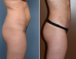 Female Liposuction results side view Dr Barry Eppley Indianapolis