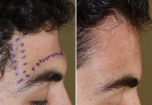 Forehead Augmentation with PMMA intraop result Dr Barry Eppley Indianapolis