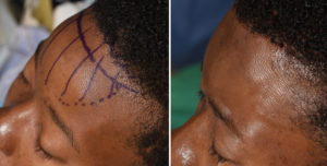 Forehead Bony Reduction with Hairline Advancement intraop result left oblique view Dr Barry Eppley Indianapolis