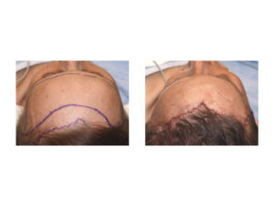 Forehead Reduction with Hairline Advancement intraop top view Dr Barry Eppley Indianapolis