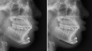Inferior Border Shave afetr Setback Sliding genipoplasty x-ray Dr Barry Eppley Indianapolis