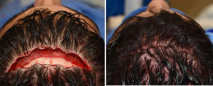 Limited Frontal Cranioplasty incision and closure Dr Barry Eppley Indianapolis