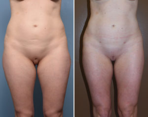 Liposculpture results front view Dr Barry Eppley Indianapolis