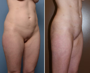 Liposculpture results oblique view Dr Barry Eppley Indianapolis