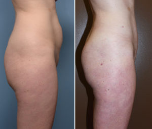 Liposculpture results side view Dr Barry Eppley Indianapolis