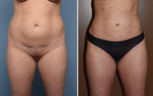 Liposuction results front view Dr Barry Eppley Indianapolis