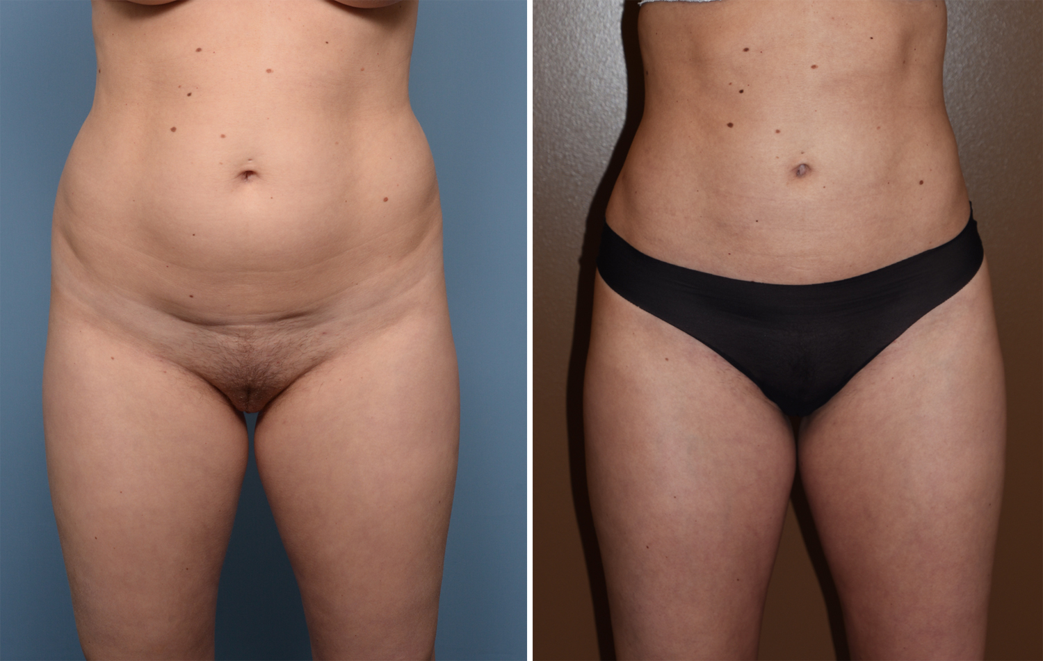Plastic Surgery Case Study Power Assisted Liposuction Of Abdomen And Flanks Explore Plastic Surgery