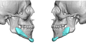 Malpositioned Jaw Implants
