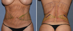 Maxumum Waistline Reduction Surgery with Rib Rermovals Dr Barry Eppley Indianapolis