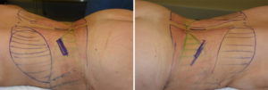 Posterior Rib Removal incisions Dr Barry Eppley Indianbapolis