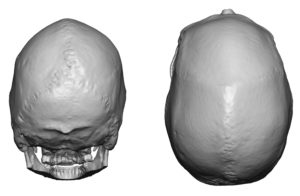 Sagittal Crest Skull Deformity 2 Dr Barry Eppley Indianapolis