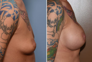 Tear drop Breast Implants result side view Dr Barry Eppley Indianapolis