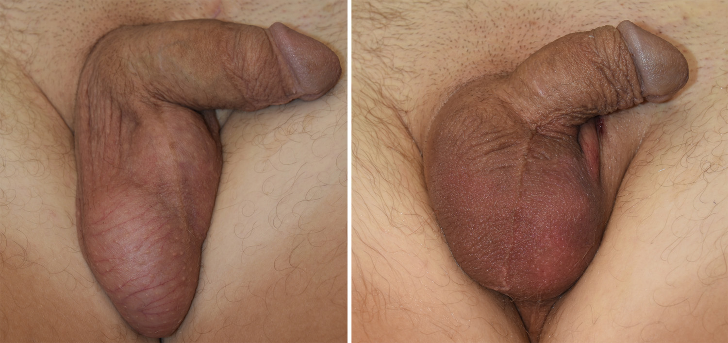 Best cost penile prosthesis insertion surgery, treatment hospital in india