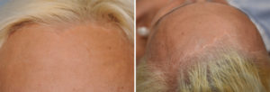 Total Forehead Reduction hairlinke scar result Dr Barry Eppley Indianapolis