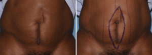 Vertical Tummy Tuck markings Dr Barry Eppley Indianapolis
