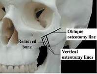 cheekbone reduction osteotomies Dr Barry Eppley Indianapolis