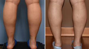 Calf and Ankle Liposuction result back view Dr Barry Eppley Indianapolis