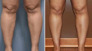 Calf and Ankle Liposuction results front view Dr Barry Eppley Indianapolis