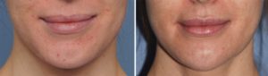 Chin Reduction Reshaping Osteotomies result front view Dr Barry Eppley Indianapolis