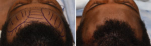 Frontal Bossing reduction inatrop result top view Dr Barry Eppley Indianapolis