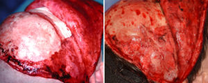 Hydroxyapatite Cement inj Craniofacial Surgery Long Ternm result obloique view Dr Barry Epplay Indianapolis