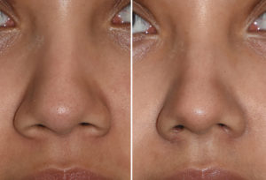Nostril Narrowing result front view Dr Barry Eppley Indianapolis