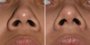 Nostril Narrowing result submental view Dr Barry Eppley Indianapolis