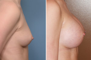 Perfect Breast Augmentation result side view Dr Barry Eppley Indianapolis