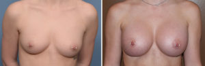 Perfect Breast Augmentation results front view Dr Barry Eppley Indianapolis