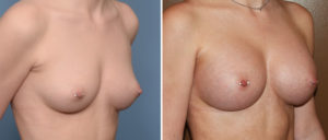 Perfect Breast Augmentation results oblique view Dr Barry Eppley Indianapolis