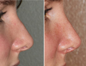Small Dorsal Hump Rhinoplasty result side view Dr Barry Eppley Indianapolis