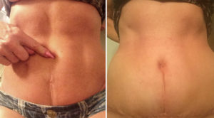 Umbilicoplasty with Mini Tummy Tuck result Dr Barry Eppley Indianapolis