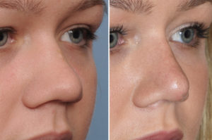 Wide Nose Rhinoplasty result oblique view Dr Barry Eppley Indianapolis
