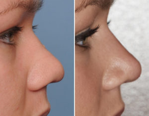Wide Nose Rhinoplasty result side view