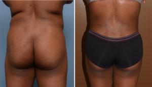 abdominal-back-liposuction