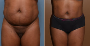 abdominal-flank-liposuction-result-front-view-dr-barry-eppley-indianapolis