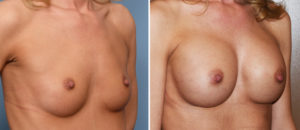 breast-augmentation-and-cleavage-results-oblique-view-dr-barry-eppley-indianapolis