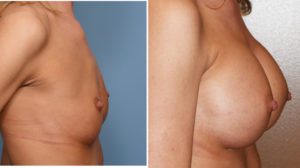 breast-augmentation-and-cleavage-results-side-view-dr-barry-eppley-indianapolis