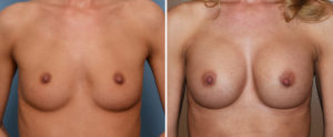 breast-augmentation-with-cleavage-results-front-view-dr-barry-eppley-indianapolis