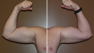 custom-bicep-implants-result-dr-barry-eppley-indianapolis
