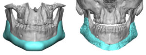 custom-jawline-implant-3d-ct-scan-result-front-view-dr-barry-eppley-indianapolis