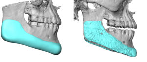 custom-jawline-implant-3d-ct-scans-side-view-dr-barry-eppley-indianapolis