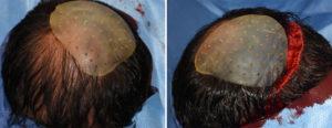 custom-occipital-implant-fo-asymmetry-dr-barry-eppley-indianapolis